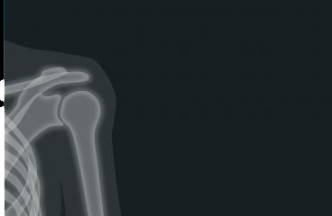 Les nouvelles applications des rayons X